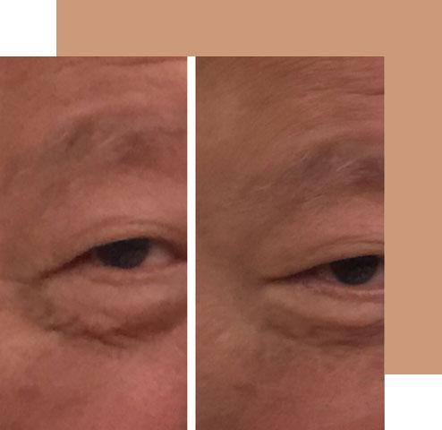 Wrinkles Lessen